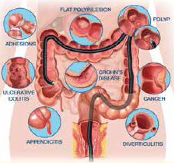Bowel-Syndrome
