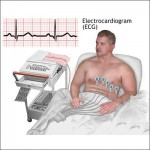 ECG Test – Reasons, Types, Essentiality and Response