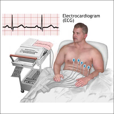 how to get an ekg done