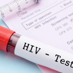 HIV Test – Types, Procedure, Importance and Results