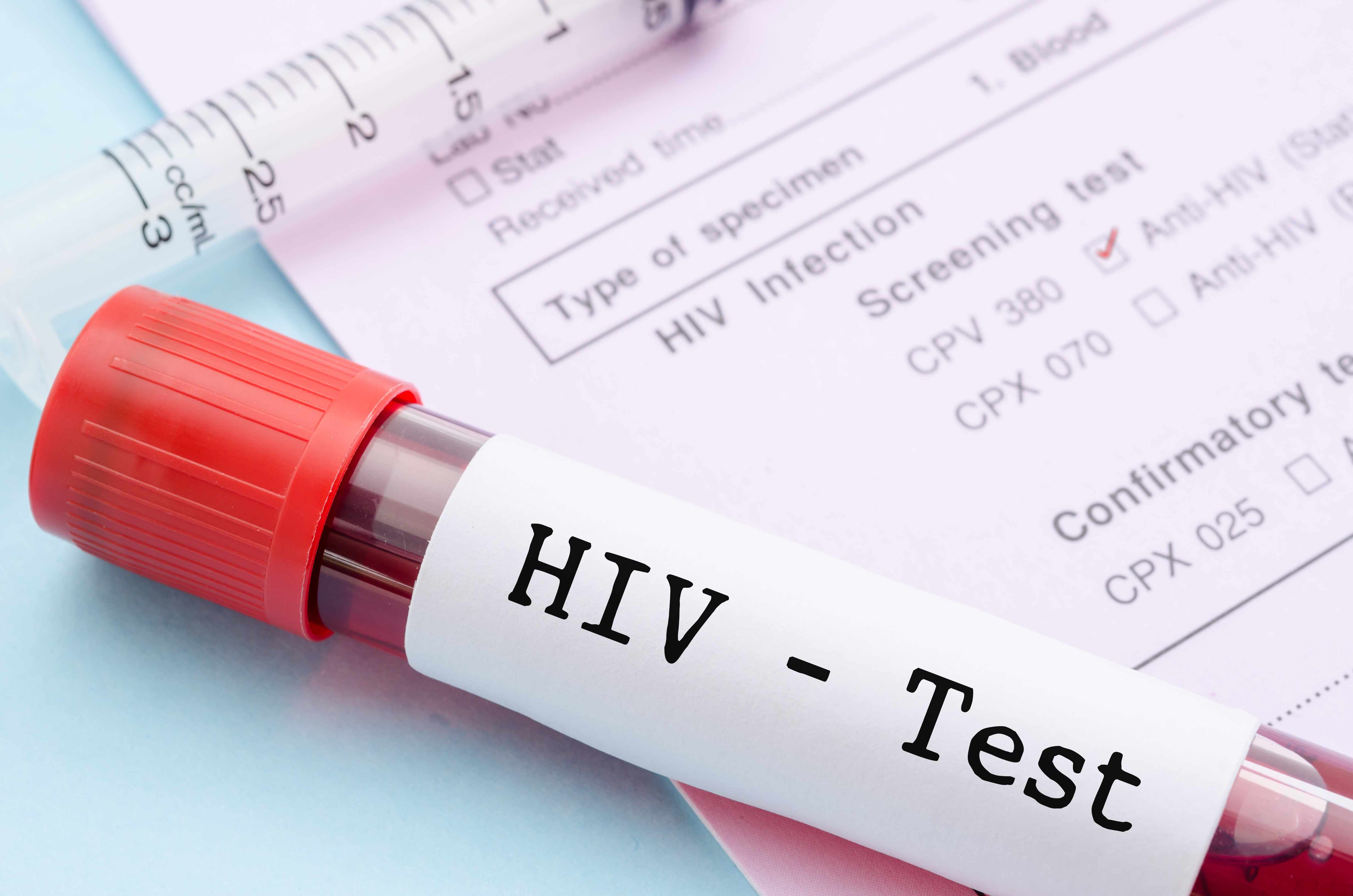 HIV Test -Types, Procedure, Importance and Results -Dr Lal