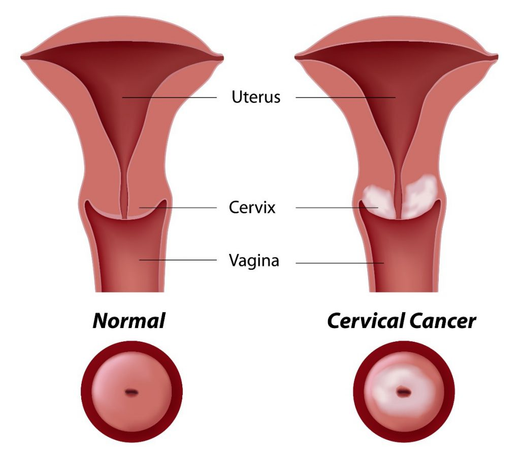 Cervical Cancer Symptoms That You Should Know