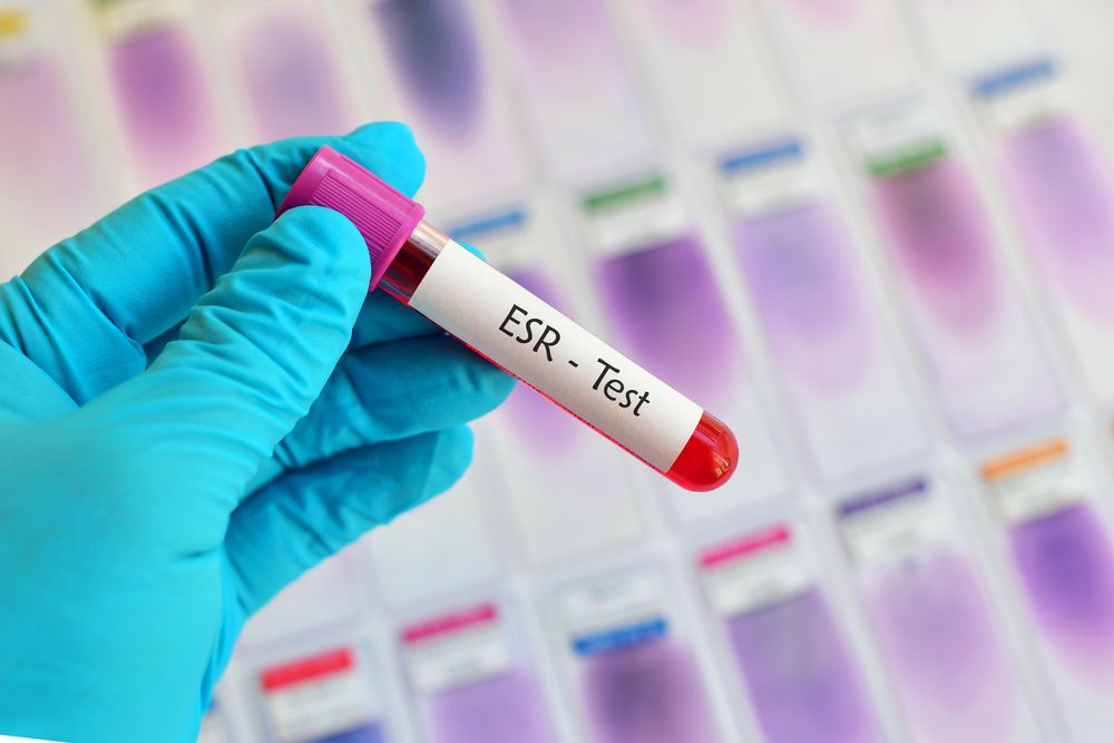 what is esr in blood test
