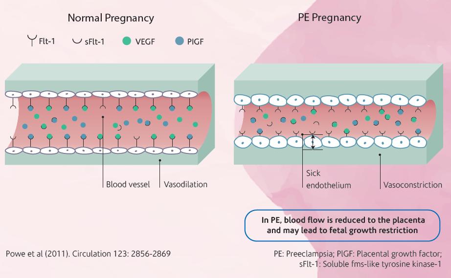 PE pregnancy