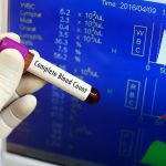 What is a Complete Blood Count (CBC)?
