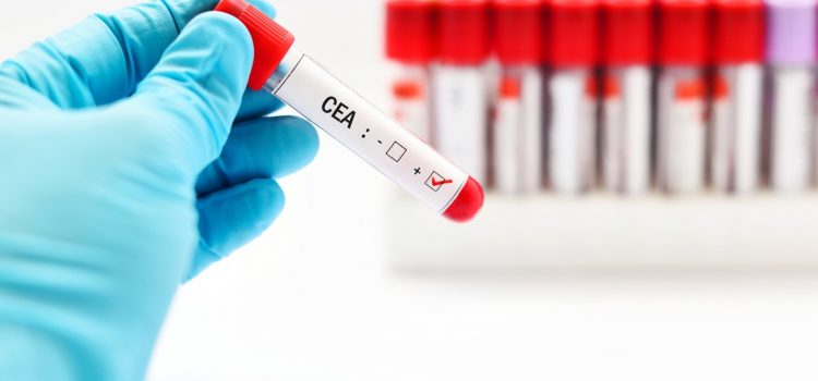 What is Carcinoembryonic Antigen Test (CEA)?