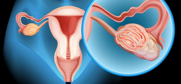 What are the early signs and symptoms of Ovarian Cancer?