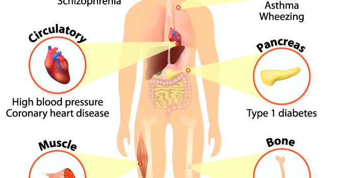 What are the important Signs and Symptoms of Vitamin D deficiency?