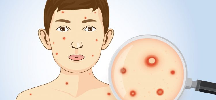 What are the causes and symptoms of chicken pox?