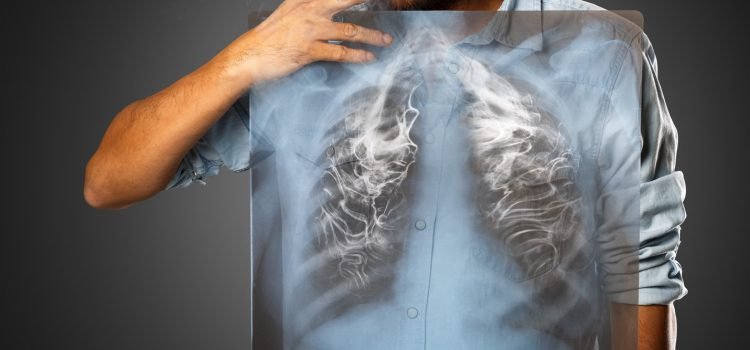 What is Lung Cancer and What are its Effects?