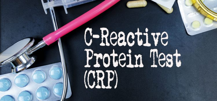 What's the Treatment for C-Reactive Protein?