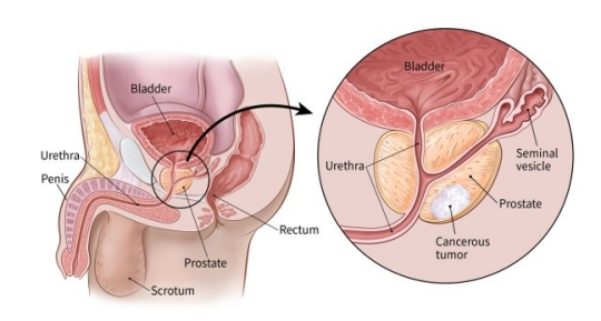 type of prostate cancer