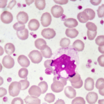 What Are Monocytes? – Definition, Function & Blood Test
