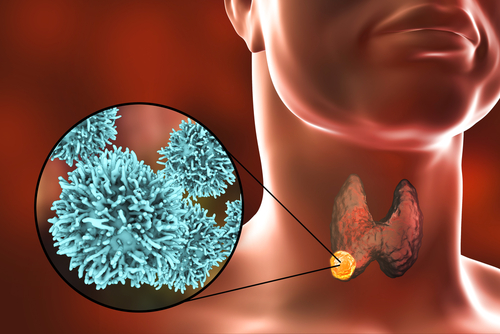 Thyroid Disorders Causes