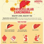 28th July, World Hepatitis Day : Hepatocellular Carcinoma – Healthy Liver, Healthy You