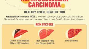 Hepatocellular Carcinoma - A Primary Liver Cancer