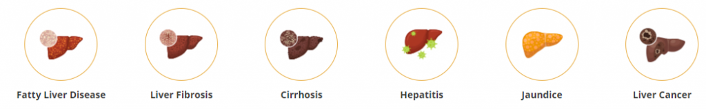 Liver-Diseases-Types