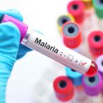 Malaria – Symptoms, Complications and Diagnosis