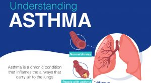 Overview of Asthma