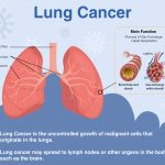 Lung Cancer: Signs, Symptoms, Diagnosis & Treatment