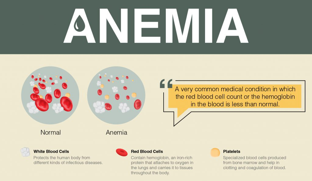 Overview of Anemia