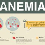 Signs, Symptoms, Causes and Treatment of Anemia