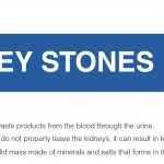 Kidney Stones – Signs, Symptoms, and Treatment